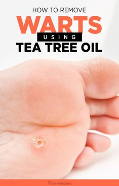How to Remove Warts using Tea Tree Oil Many ways of getting rid of warts in which tea tree oil is one best way to remove warts effectively. Tea tree essential oil is derived from the leaves of melaleuca alternifolia, native to Australia. It should be app Warts On Hands, Warts On Face, Get Rid Of Warts, Remove Warts, How To Get Rid, How To Remove, What Causes Warts, Types Of Warts, Beauty Tutorials
