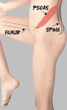 psoas1 stretches for excessive anterior pelvic tilt