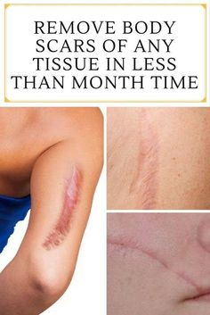 Your mind smogs your confidence when you scar which are quite prominent on your body. There is one detail solution to remove such a scar. I got one such scar vanish from my right arm after an bike fall of only applying virgin coconut oil for a year.