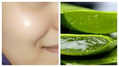 You can achieve a bright and glowing skin when you make use of aloe vera gel. Aloe vera is very effective in the treatment of numerous skin conditions ...