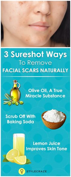facial scars are a source of great deal of embarrassment and anyone with acne prone is bound to have suffered from this. Here are some tips on how to remove facial scars. Facial Scar Removal, Facial Scars, Acne Scars, Acne Remedies, Natural Remedies, Natural Treatments, Acne Treatments, Herbal Remedies, Health Remedies