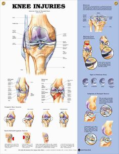 Knee Injuries anatomy poster shows anterior view of normal knee anatomy, oblique and posterior views.