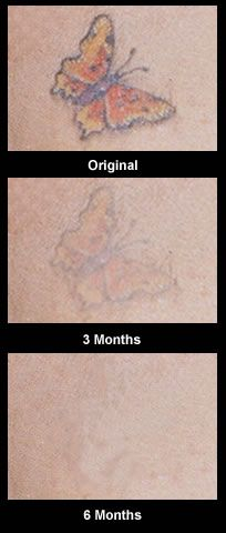 There is a natural, inexpensive and pain free way to remove unwanted tattoos in your body. If you really want to know, all the information that you need is in Get Rid Tattoo - Natural Tattoo Removal Solution found at  http://tattoo-qm50hycs.canitrustthis.com