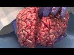 The Human Brain (Unfixed)...an amazingly thorough analysis by the University of Utah Brain Institute