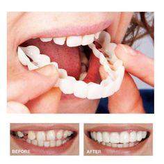 Instant Snap on Perfect Smile Veneers Snap on Smile Teeth Best Teeth Whitening, Whitening Kit, Perfect Smile Teeth, Snap On Smile, Veneers Teeth, Dental Veneers, Get Whiter Teeth, Crooked Teeth, Coconut Oil For Teeth