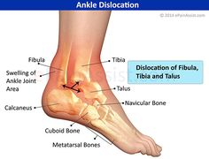 Dislocated Ankle or Ankle Dislocation Read: http://www.epainassist.com/sports-injuries/ankle-injuries/dislocated-ankle-or-ankle-dislocation-symptoms-causes-treatment