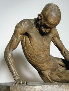 """Smugglerius is an écorché sculpture of a man posed in imitation of the ancient Roman sculpture known as the Dying Gaul. The original bronze cast was made in 1776 by Agostino Carlini for William Hunter, first Professor of Anatomy at the Royal Academy Schools, from the body of a muscular criminal, flayed after he was hanged at Tyburn. The criminal was thought to be a smuggler, and so the cast of his body was given the mocking cod Latin name """"Smugglerius""""."""
