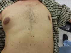 Information about Unilateral Gynecomastia #UnilateralGynecomastia