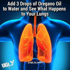 The most common cause of a bacterial pneumonia is Streptococcus pneumoniae. In this form of pneumonia there is usually an abrupt onset of the illness with shaking chills fever and production of a rust-colored sputum. The infection spreads into the blood i
