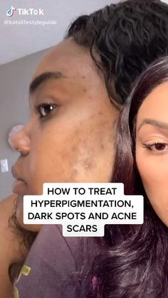 Learn how to get rid of dark spots from acne Beauty Tips For Glowing Skin, Clear Skin Tips, Beauty Skin, Clear Skin Face, Good Skin Tips, Beauty Tips For Face, Beauty Care, Beauty Hacks, Pimple Scars
