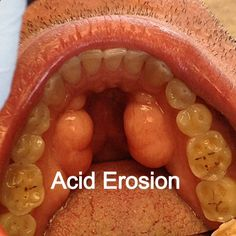 Acid erosion from chronic GERD may damage the health of your teeth, a study finds. Read the article here.