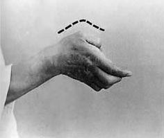 Keitō uke Hands