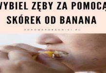 Wybiel zęby za pomocą skórek od banana Gold Rings