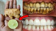 In two minutes this recipe will make dirty yellow teeth like pearls - teeth whitening Teeth Whitening Remedies, Natural Teeth Whitening, Teeth Health, Dental Health, Eyebrow Makeup Tips, Beauty Makeover, Skin Tag Removal, Natural Health Remedies, Beauty Care