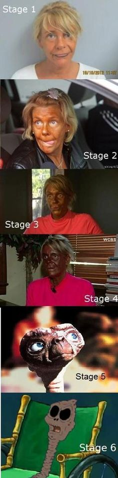 Why to use sunblock