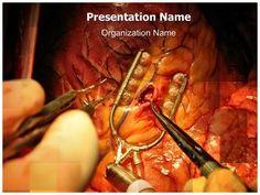 Surgical procedure ppt template for medical professionals create surgical procedure ppt template for medical professionals create sade e exerccios pinterest exerccio e sade toneelgroepblik Images