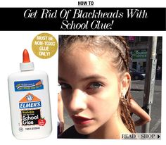 How To Get Rid of Blackheads With School Glue!