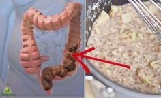 Death begins in the colon.' So said Hippocrates of Cos the ancient Greek physician (ca. 460 BC ca. And modern science has shown that he was correct. More than 50 million Americans have bowel issues related to colon health. While some of the pro Health And Wellness, Health Tips, Health Fitness, Health Benefits, News Health, Mental Health, Natural Cures, Natural Health, Healthy Drinks