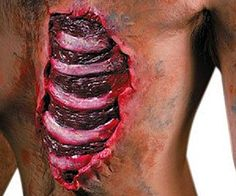 Spare-Ribs-Chest-Wound