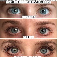 Rodan + Fields was created by leading Dermatologists Dr. Katie Rodan and Dr. Mascara Tips, How To Apply Mascara, Applying Mascara, Rodan And Fields Canada, Rodan Fields Lash Boost, Before After Photo, Lots Of Makeup, Free Makeup, Skin Care Regimen