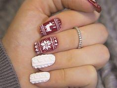 Gel Nail Designs You Should Try Out – Your Beautiful Nails Holiday Nail Art, Christmas Nail Art Designs, Winter Nail Art, Cute Christmas Nails, Xmas Nails, Pink Nails, Simple Christmas, White Nails, New Nail Designs