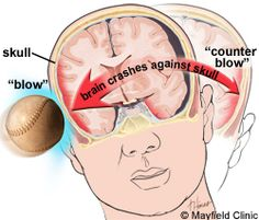 What is traumatic brain injury - explained very well here.