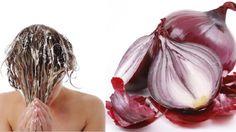 Téměř každou z nás trápí otázky týkající se vlasů. Ať jde o vypadávání vlasů, lupy, menší objem, vysušené konečky apod.