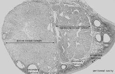 tejido urogenital  (ovario)
