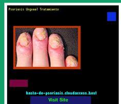 Psoriasis Ungueal Tratamiento 224018 - Basta De Psoriasis!