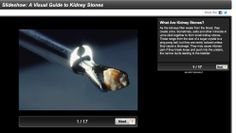 KIDNEY STONES - [SLIDESHOW] A Visual Guide to Kidney Stones ...See pictures of different types, the causes, symptoms, and treatments. Learn who gets kidney stones and how to prevent them. WebMD Health Tools