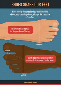 Shoes Shape Our Feet - How to Treat Your Feet