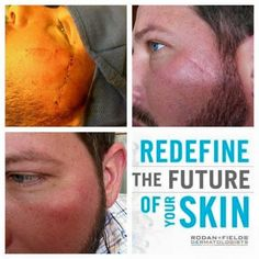 This gentleman is the husband of an R+F Consultant. He had surgery for skin cancer which left him with a scar. A scar he decided he wanted gone. His after picture bottom left was achieved using Rodan and Fields Redefine AMP MD System (Roller and Night Renewing Serum) and the Redefine Multi Function Eye Cream! These results are amazing! http://iarman.myrandf.com