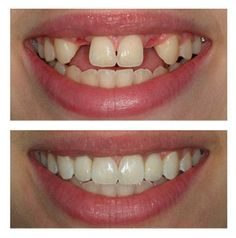 Missing teeth can affect your ability to chew and may allow adjacent teeth to move or shift. We offer an array of restoration dentistry options for tooth replacement including dental implants, bridges, dentures and partial dentures.