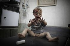 2013, General News, 2nd prize singles, Sebastiano Tomada. WOUNDED BABY, ALEPPO (03 October 2012). Aleppo, Syria:  A severely wounded child awaits medical treatment by the small staff of doctors in one of the city's last standing hospitals, as President Bashar al-Assad's army steps up its military campaign to regain control of the city.