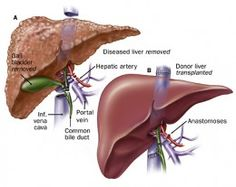 Getting ready for a liver transplant