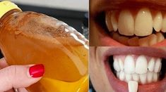 Gargle With This Simple Ingredient And See What Happens To Your Teeth! (Gargle With This Simple Ingredient And See What Happens To Your Teeth! Teeth Whitening Remedies, Natural Teeth Whitening, Teeth Care, Smile Teeth, Natural Home Remedies, Oral Health, Teeth Health, Dental Health, Health Advice