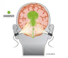 Valkee Human Charger - Anti Jetlag und SAD Headset      Licht-Therapie über den Hörkanal direkt an die lichtempfindlichen Abschnitte des Gehirns