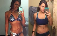 What It's Like to Have 10 Pounds of Excess Skin Removed