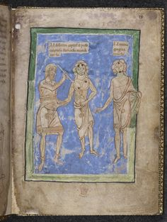 Physician demonstrates cautery points. late 12c. British Library