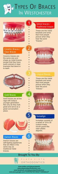 What to eat with sore teeth things my grandkids can eat with getting braces to help straighten your teeth no longer means needing to have a solutioingenieria Gallery