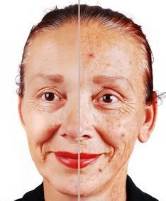 how to get rid of brown sun spots on nose