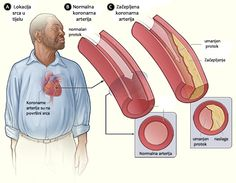 Ovaj napitak razbija začepljenja i čisti vaše koronarne arterije – Recepti za sve