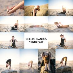 m.newsom photography - Ehlers Danlos Syndrome