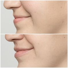 Restylane silk to plump the lips.  #beauty #lips