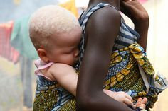 Albino children are being murderd in Tanzania Africa by witch doctors. Please pin this to get people talking. Such a beautiful little girl she deserves to live without fear,
