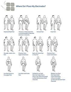 Resultado de imagem para placement of electrodes for tens unit Sciatica Symptoms, Sciatica Relief, Sciatica Exercises, Bulging Disc In Neck, Herniated Disc Lower Back, Tens Electrode Placement, Tens Unit Placement, Tens And Units, Acupuncture