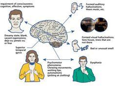 Complex partial seizure