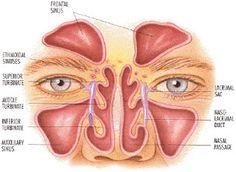 http://www.spesialisobatamandel.web.id/cara-mengobati-radang-selaput-lendir-hidung-sinusitis/