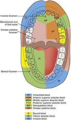 Local anesthetic blocks and the structures anesthetized. Dentaltown - Dental Anatomy and Tooth Morphology