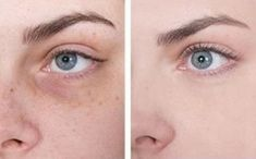 How to get rid of bags under the eyes? How to get rid of bags under the eyes? Beauty Care, Hair Beauty, How To Get Rid, Anti Aging, Skin Care, Eyes, Makeup, Health, Fitness